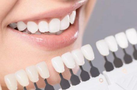Kur është e nevojshme stomatologjia estetike?