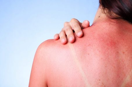 Alergjia nga dielli: Çfarë duhet të dini dhe si të kujdeseni