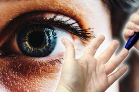 Sheqeri i lartë mund të shihet në sy dhe këmbë