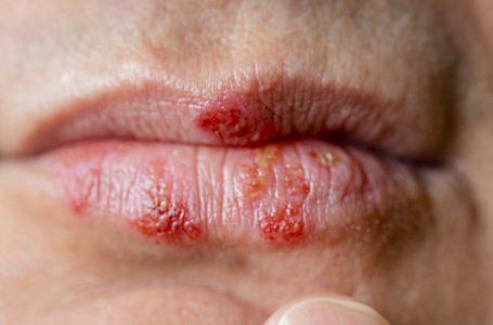 Pse shfaqet herpsesi në buzë ?